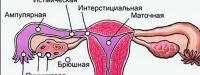 как узнать внематочную беременность