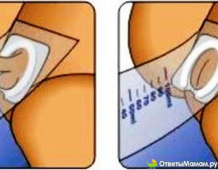 анализы у грудничка