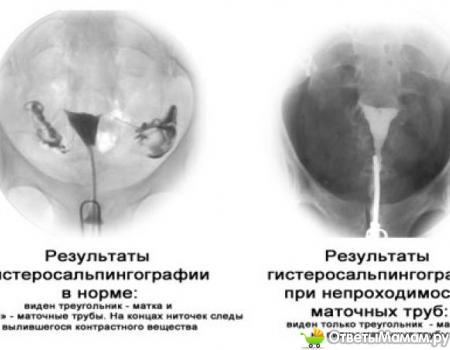 ГСГ маточных труб