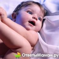 Симптомы гидроцефалии у детей