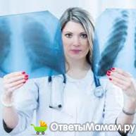 диагностика отека легких
