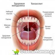 здоровые гланды и тонзиллит